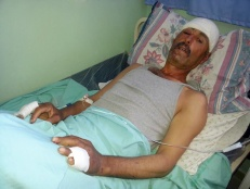Palestinian Shepherd Beaten with Metal Rods by Settlers