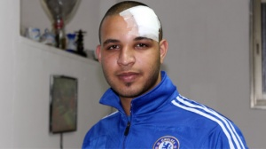 Palestinian Man Shot in the Face with a Rubber Bullet