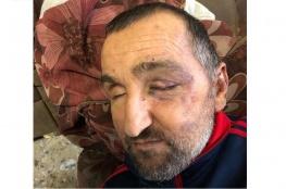 شهادة السيد الكفيف منذر طلال مزهر حول اعتداء قوات الاحتلال عليه وضربه بشكل مبرح في بيته رغم خطورة حالته الصحية